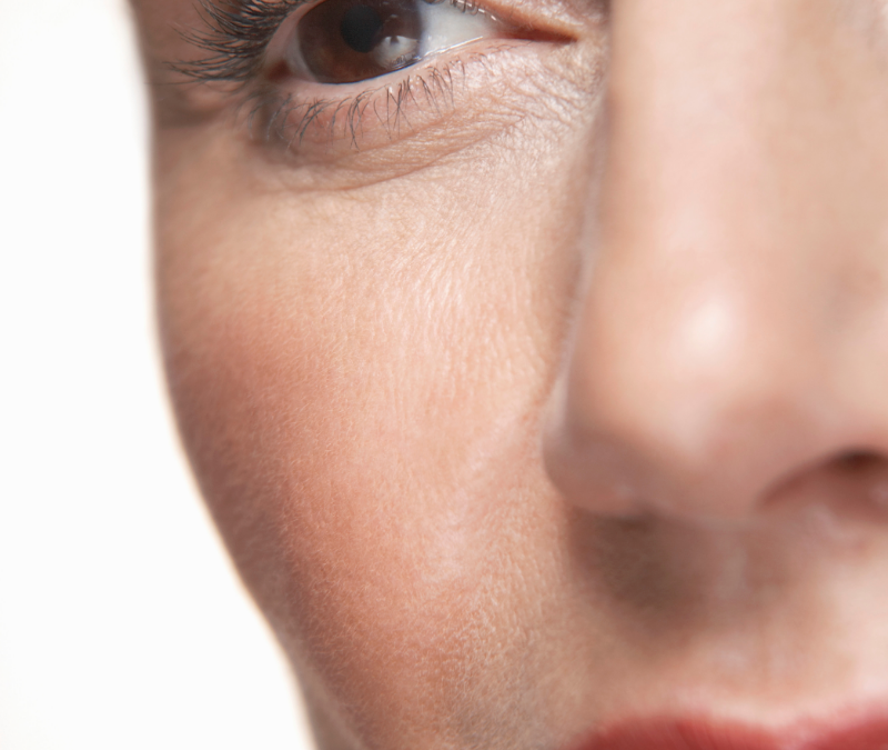 Acne and Rosacea in Menopause